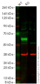 Western blot - Anti-PTBP1 antibody [EPR9048(B)] (ab133734)