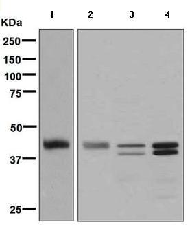 Western blot - Anti-TTF1 antibody [EPR5955(2)] (ab133737)
