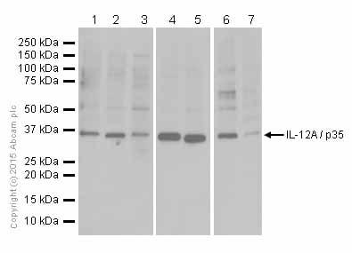 Western blot - Anti-IL-12A antibody [EPR5736] (ab133751)