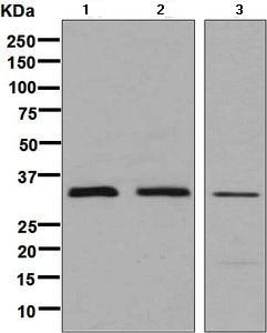 Western blot - Anti-PEX7 antibody [EPR7715(2)(B)] (ab133754)