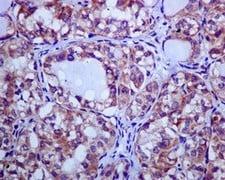 Immunohistochemistry (Formalin/PFA-fixed paraffin-embedded sections) - Anti-CLPTM1 antibody [EPR8800] (ab133756)