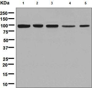 Western blot - Anti-CLPTM1 antibody [EPR8800] (ab133756)
