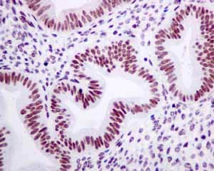 Immunohistochemistry (Formalin/PFA-fixed paraffin-embedded sections) - Anti-TAF15 antibody [EPR9196(B)] (ab133760)