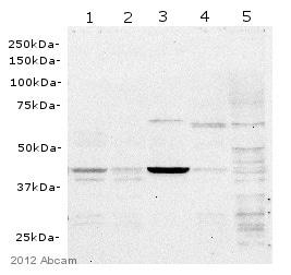 Western blot - Anti-USH1C/Harmonin antibody [EPR8131] (ab133763)