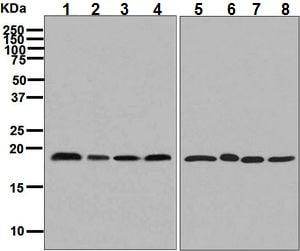 Western blot - Anti-TMP21 antibody [EPR9037(B)] (ab133771)