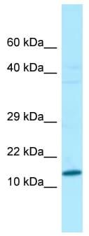Western blot - Anti-VCY antibody (ab133819)