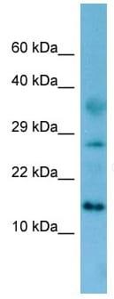 Western blot - Anti-FAM19A4 antibody (ab133927)