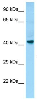 Western blot - Anti-GPCR GPR34 antibody (ab133934)