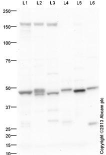 Western blot - Anti-ACOT1 antibody (ab133948)