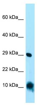 Western blot - Anti-MitoNEET antibody (ab133970)