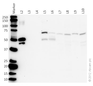 Western blot - Anti-PDP2 antibody [MS41A 3C3BC10] (ab133982)