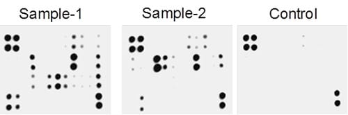 Multiplex Protein Detection - Mouse Inflammation Antibody Array - Membrane (40 Targets) (ab133999)