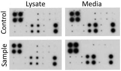 Dot Blot - Human MMP Antibody Array - Membrane (10 Targets) (ab134004)