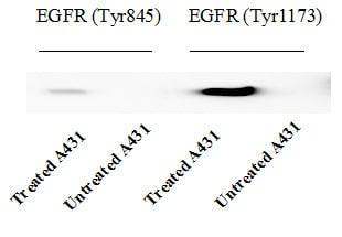 Western blot - Human EGFR Phosphorylation Antibody Array - Membrane (17 Targets) (ab134005)