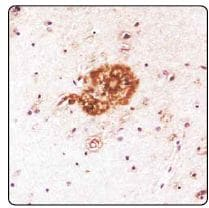 Immunohistochemistry (Formalin/PFA-fixed paraffin-embedded sections) - Anti-beta Amyloid antibody (ab134022)