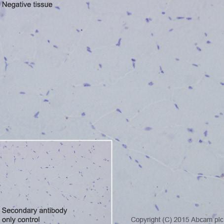 Immunohistochemistry (Formalin/PFA-fixed paraffin-embedded sections) - Anti-CD63 antibody [EPR5702] (ab134045)