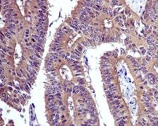 Immunohistochemistry (Formalin/PFA-fixed paraffin-embedded sections) - Anti-SODD antibody [EPR3597] (ab134051)