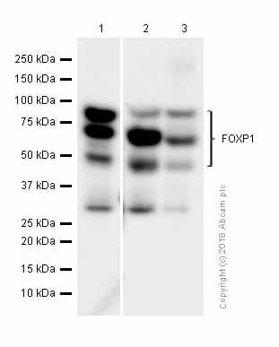 Western blot - Anti-FOXP1 antibody [EPR4113] (ab134055)