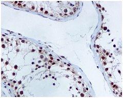 Immunohistochemistry (Formalin/PFA-fixed paraffin-embedded sections) - Anti-XRCC1 antibody [EPR4389(2)] (ab134056)