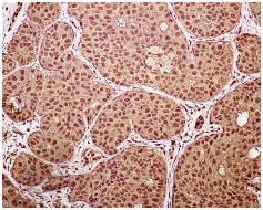 Immunohistochemistry (Formalin/PFA-fixed paraffin-embedded sections) - Anti-hnRNP K antibody [EPR944] (ab134060)