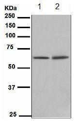 Western blot - Anti-hnRNP K antibody [EPR944] (ab134060)