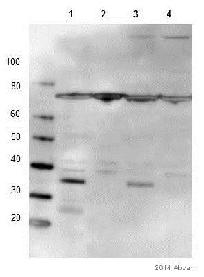 Western blot - Anti-STUB1/CHIP antibody [EPR4447] (ab134064)