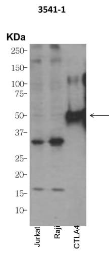 Western blot - Anti-CTLA4 antibody [EPR1476] (ab134090)