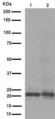 Western blot - Anti-CD3G antibody [EPR4517] (ab134096)