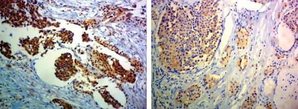 Immunohistochemistry (Formalin/PFA-fixed paraffin-embedded sections) - Anti-Ret antibody [EPR2871] (ab134100)
