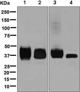 Western blot - Anti-CD79b antibody [EPR6860] (ab134103)