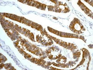Immunohistochemistry (Formalin/PFA-fixed paraffin-embedded sections) - Anti-CD97 antibody [EPR4428] (ab134105)