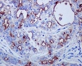Immunohistochemistry (Formalin/PFA-fixed paraffin-embedded sections) - Anti-Mesothelin antibody [EPR2685(2)] (ab134109)