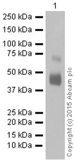 Western blot - Anti-Mesothelin antibody [EPR2685(2)] (ab134109)