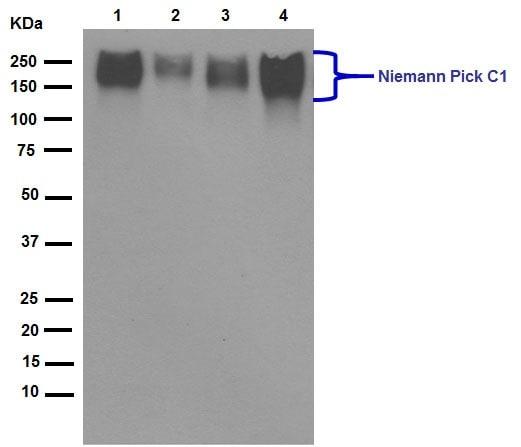 Western blot - Anti-Niemann Pick C1 antibody [EPR5209] (ab134113)