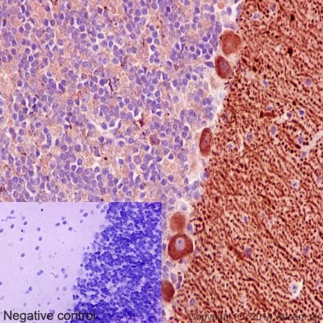 Immunohistochemistry (Formalin/PFA-fixed paraffin-embedded sections) - Anti-Niemann Pick C1 antibody [EPR5209] (ab134113)
