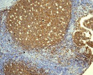 Immunohistochemistry (Formalin/PFA-fixed paraffin-embedded sections) - Anti-CD19 antibody [EPR5906] (ab134114)
