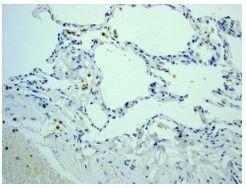 Immunohistochemistry (Formalin/PFA-fixed paraffin-embedded sections) - Anti-Myeloperoxidase antibody [EPR4793] (ab134132)