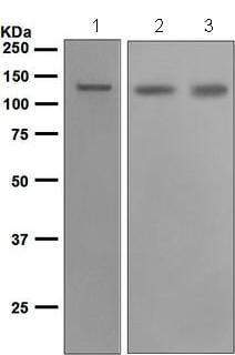 Western blot - Anti-cadherin 10 antibody [EPR5115] (ab134137)