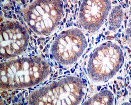Immunohistochemistry (Formalin/PFA-fixed paraffin-embedded sections) - Anti-eIF4B (phospho S406) antibody [EPR7683] (ab134138)