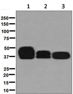 Western blot - Anti-CD79b antibody [EPR6861] (ab134147)