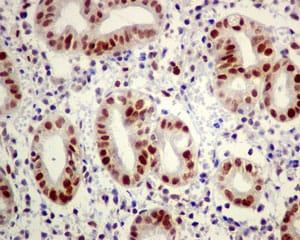 Immunohistochemistry (Formalin/PFA-fixed paraffin-embedded sections) - Anti-Dnmt1 antibody [EPR3521(2)] (ab134148)