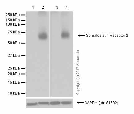Western blot - Anti-Somatostatin Receptor 2 antibody [UMB1] - C-terminal (ab134152)
