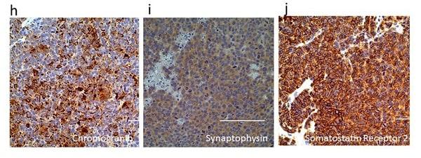 Immunohistochemistry (Formalin/PFA-fixed paraffin-embedded sections) - Anti-Somatostatin Receptor 2 antibody [UMB1] - C-terminal (ab134152)