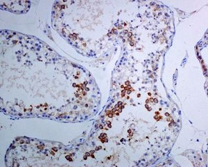 Immunohistochemistry (Formalin/PFA-fixed paraffin-embedded sections) - Anti-TACC3 antibody [EPR7756] (ab134154)