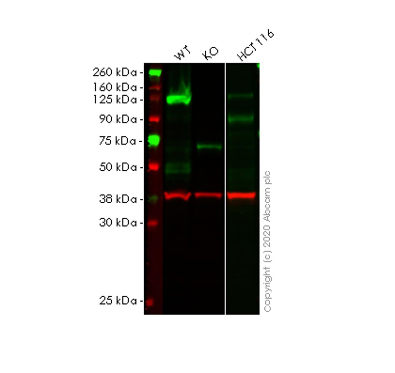 Western blot - Anti-TACC3 antibody [EPR7756] (ab134154)