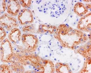 Immunohistochemistry (Formalin/PFA-fixed paraffin-embedded sections) - Anti-Cathepsin S antibody [EPR5128] (ab134157)