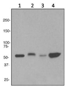 Western blot - Anti-Slit2 antibody [EPR2771] (ab134166)