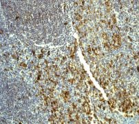 Immunohistochemistry (Formalin/PFA-fixed paraffin-embedded sections) - Anti-CD31 antibody [EP3095] (ab134168)