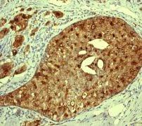 Immunohistochemistry (Formalin/PFA-fixed paraffin-embedded sections) - Anti-Cathepsin D antibody [EPR3054] (ab134169)