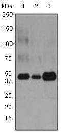 Western blot - Anti-Cathepsin D antibody [EPR3054] (ab134169)